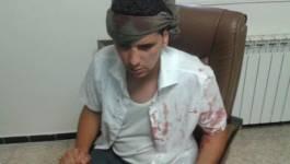 Ksar El Boukhari : un jeune tabassé par les gendarmes