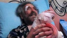 Syrie : Ali Farzat, célèbre caricaturiste, enlevé et tabassé