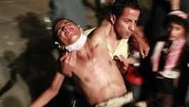 Vingt-cinq manifestants hostiles à Saleh tués à Sanaa