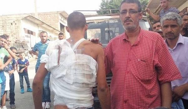 Le jeune Belaribi brûlé par une bombe lacrymogène sur la gauche. Et à droite Layachi Amroun, membre de la LADDH.