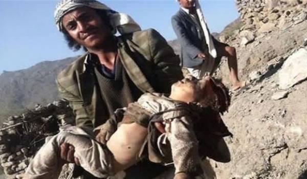Les civils yéménites sont la cible des bombardements saoudiens.
