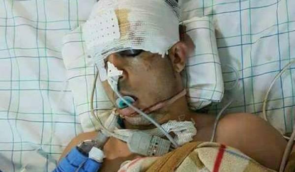 mad Atabi est décédé de ses blessures causées par la violente répression policière 20 juillet.